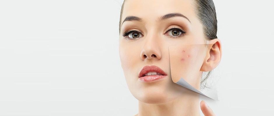 Tratamientos de control de acne
