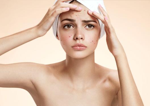 Tratamiento contra el acné, especialistas de la piel muy experimentados contra el acné